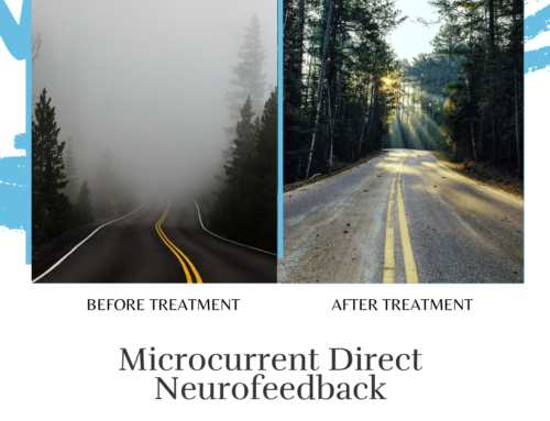 Before And After Foggy Road