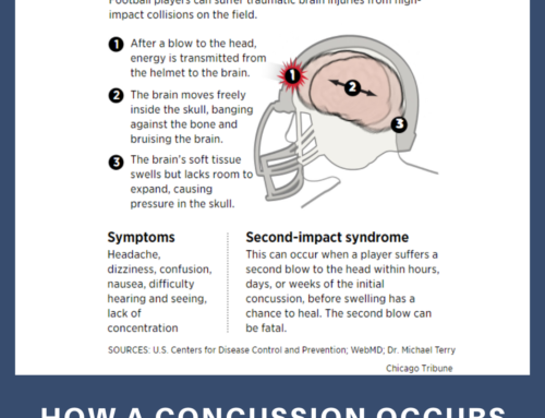 How a concussion occurs